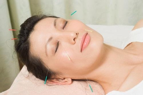 Chữa khỏi đau đầu bằng Đông Y Gia Truyền 2 Chữa khỏi đau đầu bằng Đông Y Gia Truyền