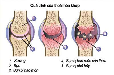 Chữa trị đau khớp gối hiệu quả bằng Đông y Chữa trị đau khớp gối hiệu quả bằng Đông y