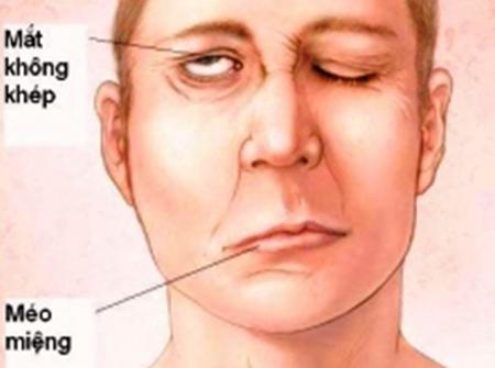 dieu-tri-liet-day-than-kinh-so-7-ngoai-bien Điều trị liệt dây thần kinh số 7 ngoại biên