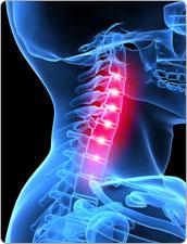 Hội chứng cổ vai cánh tay và cách điều 1 Hội chứng cổ vai cánh tay và cách điều trị