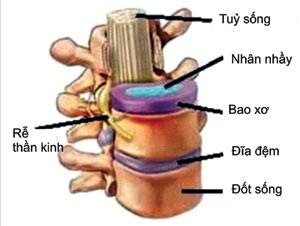 điều trị thoát vị đĩa đệm bằng đông y