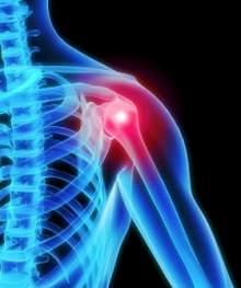 viem-quanh-khop-vai-va-cach-dieu-tri-1 Viêm quanh khớp vai và cách điều trị