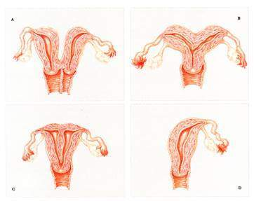 Vô sinh nữ với cách điều trị hiệu quả bằng đông y Vô sinh nữ với cách điều trị hiệu quả bằng đông y