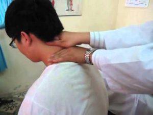 Vẹo cổ cấp và phương pháp điều trị hiệu quả