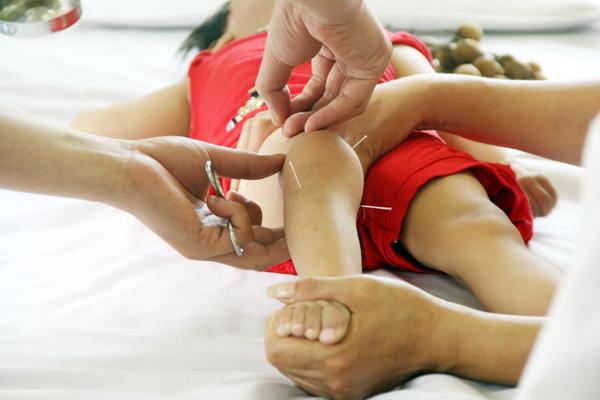 Chữa bệnh bằng châm cứu| Một số bệnh hàng ngày thường gặp: Chữa bệnh bằng châm cứu| Một số bệnh hàng ngày