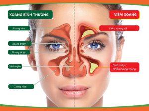 Viêm xoang triệu chứng và điều trị theo đông y