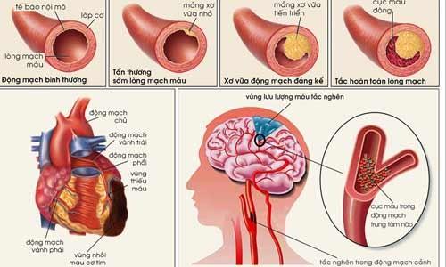Mãn kinh và tiền mãn kinh theo y học cổ truyền 1 Mãn kinh và tiền mãn kinh theo y học cổ truyền