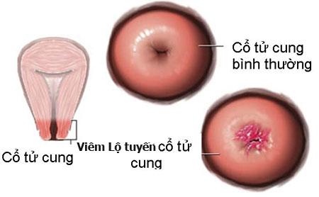 Chữa viêm lộ tuyến tử cung bằng đông y ở Hà Nội 1 Chữa viêm lộ tuyến tử cung bằng đông y ở Hà Nội