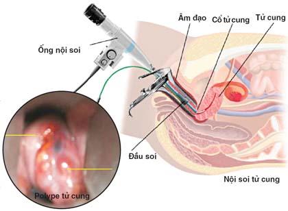 Chữa viêm lộ tuyến tử cung bằng đông y ở Hà Nội Chữa viêm lộ tuyến tử cung bằng đông y ở Hà Nội