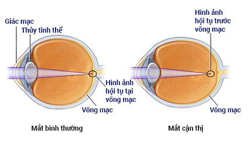 Chữa cận thị bằng đông y có hiệu quả không? 1 Chữa cận thị bằng đông y có hiệu quả không?