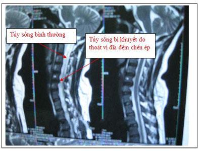 Cách chữa thoát vị đĩa đệm cột sống cổ 2 Cách chữa thoát vị đĩa đệm cột sống cổ ở Hà Nội