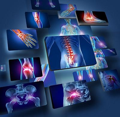 Cách chữa thoát vị đĩa đệm cột sống cổ 3 Cách chữa thoát vị đĩa đệm cột sống cổ ở Hà Nội