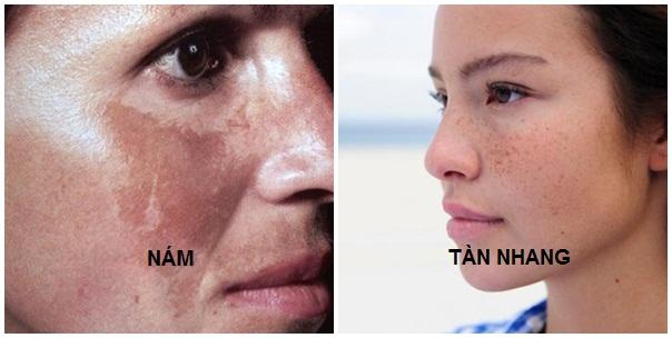 NGUYÊN NHÂN, PHÂN LOẠI NÁM & TÀN NHANG Trang chủ