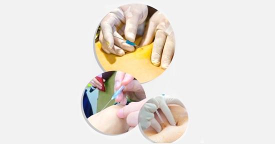 cấy chỉ trong đông y Bài giảng 1: Tổng quan về phương pháp cấy chỉ, nguyên lý và hiệu quả của phương pháp cấy chỉ