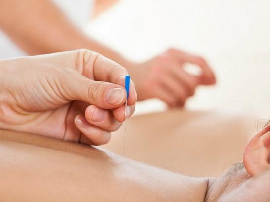 Cấy chỉ giảm đau 2 Khi nào nên chọn biện pháp cấy chỉ giảm đau cho bệnh nhân?