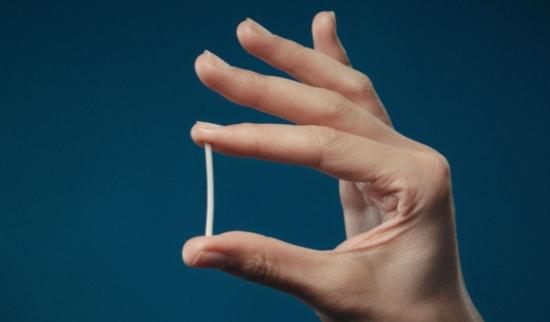 cấy chỉ tránh thai 4 Chị em mách nhau sử dụng biện pháp cấy chỉ tránh thai