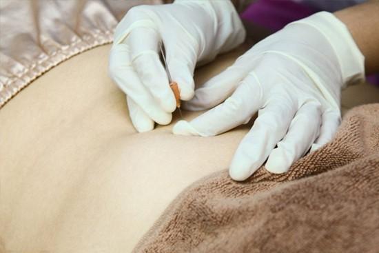 cấy chỉ giảm mỡ bụng 2 Bài giảng 4: Phương pháp cấy chỉ giảm mỡ bụng theo quy trình chuẩn của Bộ Y tế