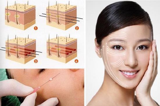 cấy chỉ vàng căng da mặt Bài giảng 9: Phương pháp cấy chỉ căng da mặt