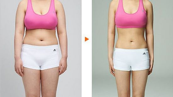 cấy chỉ giảm béo  Bài giảng 12: Phương pháp cấy chỉ giảm béo